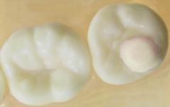 Moules pour cales de surélévation molaires Mini-Mold  G&H 166994