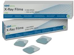 Films radiographiques périapicaux D58 Rapide Kent Dental 163266