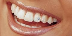 Bijou dentaire Skyce Ivoclar   Vivadent 170074